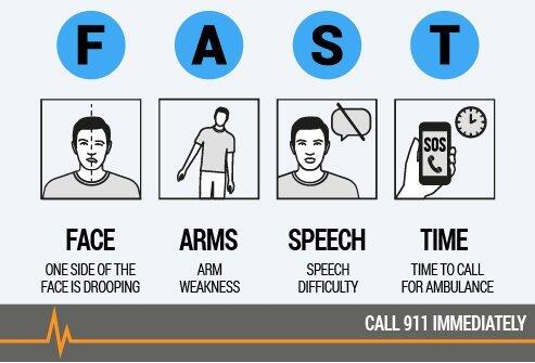 Stroke signs- FAST